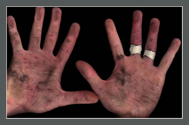 How to Remove Fiberglass From Skin   It Still Runs