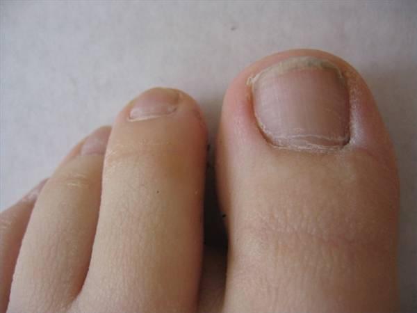 how to help an ingrown toenail