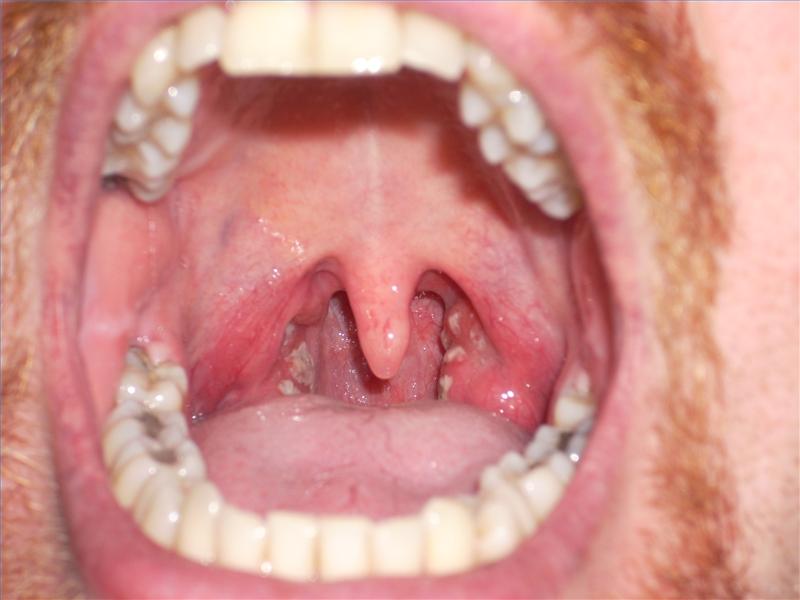 how to kill bacteria in throat