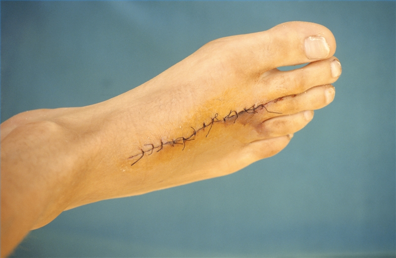 How to Remove Stitches | Healthy Living
