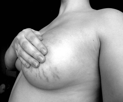 How to Remove Stretch Marks at Home