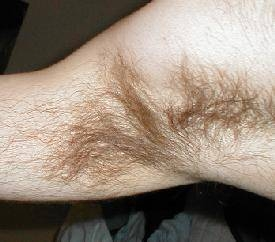 Growing stop does armpit when hair Causes of