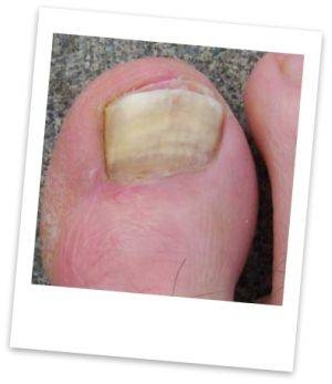 How to Use Tea Tree Oil to Eliminate Plantar Warts   LEAFtv