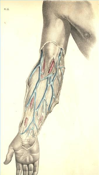 basilic vein thrombosis treatment
