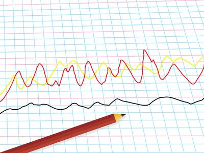 Types of Forecasting Methods | Bizfluent